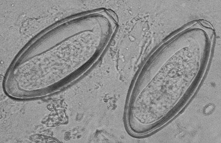 Oxyuris equi zoonosis - beton-emesztogodor.hu